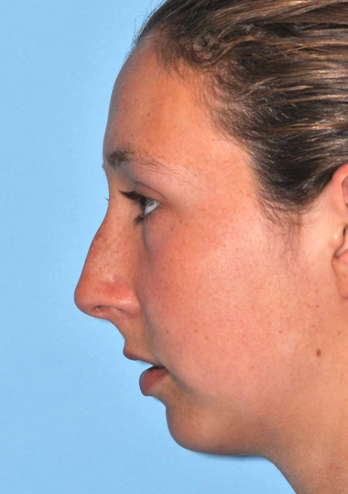Mid-Lower Face Reshaping